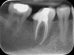 Radiografia